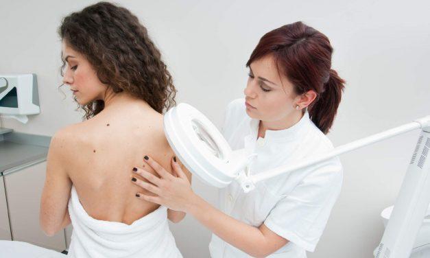 Polski dermatolog – leczenie zmian skórnych